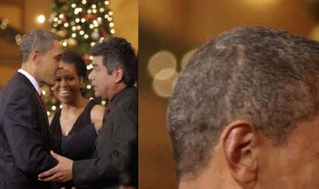 obama-head-scar