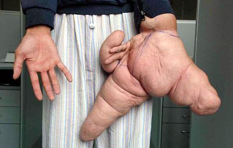Largest fingers Photoshop Picture