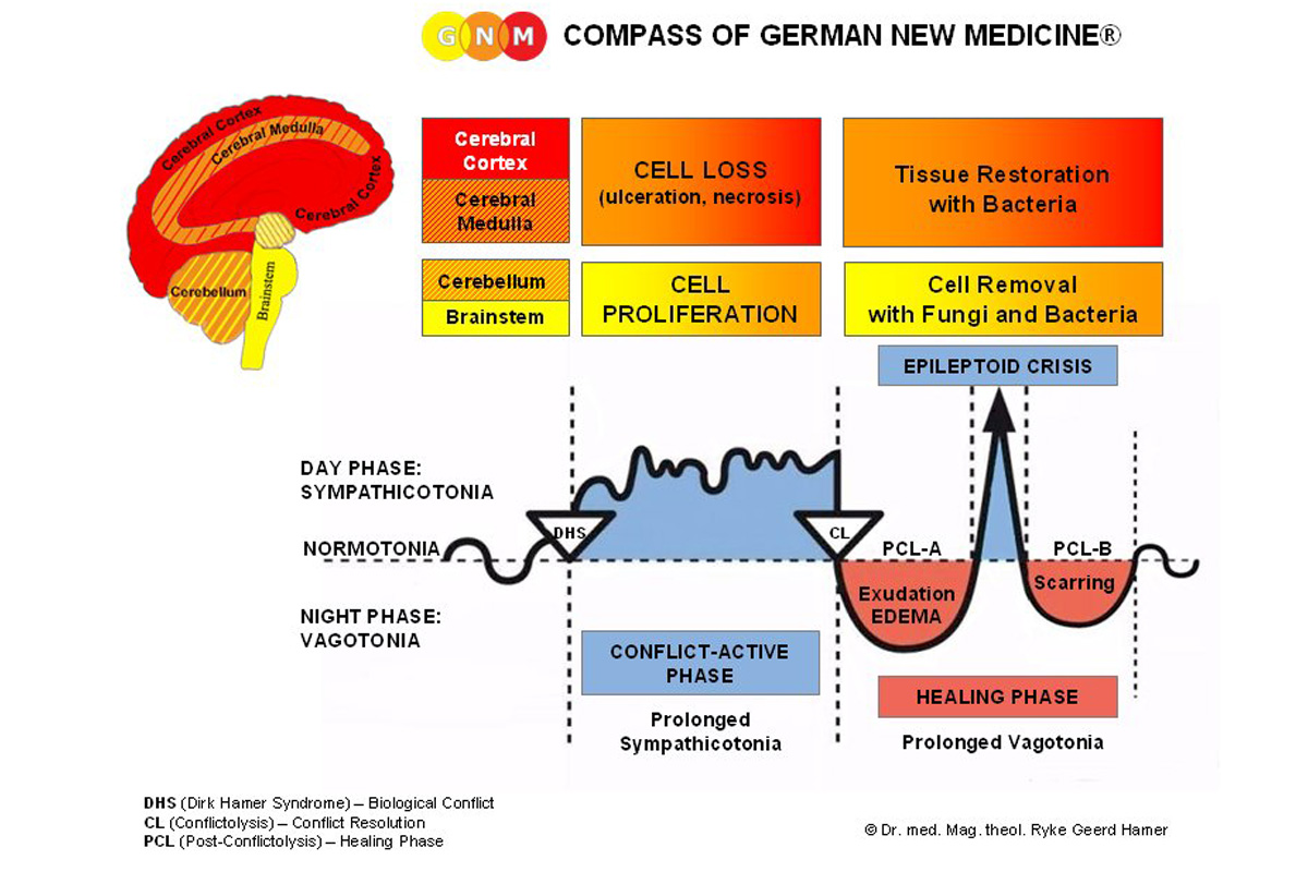 Ryke Geerd Hamer - la medecine nouvelle- German New Medicine -leyes-biologicas- terrapapers